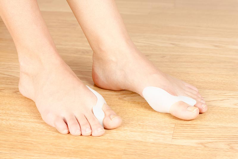 Course-douleur-pied-hallux-valgus-femme-sante-solution-diagnostic