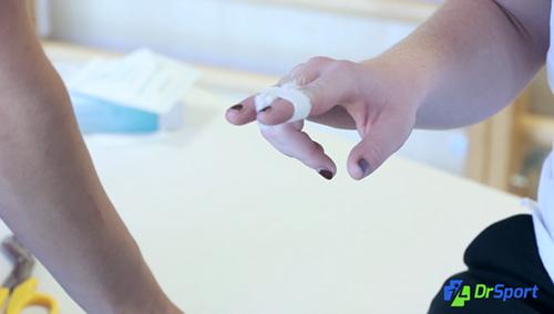 Comment réaliser un strapping pour une entorse du doigt (syndactylie) ?