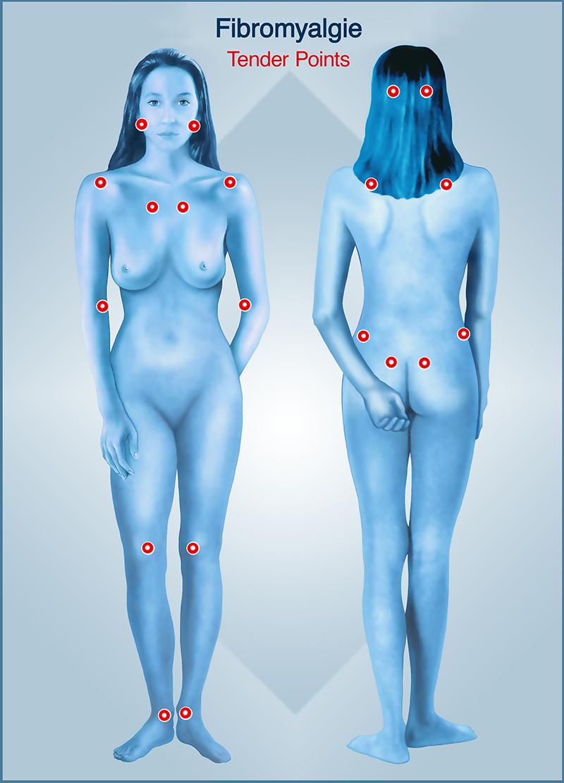 symptomes-tender-points-fibromyalgie