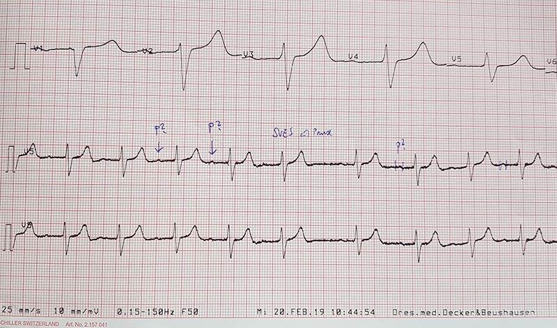 tableau-ou-graphe-des-resultats-dun-electrocardiogramme-ecg