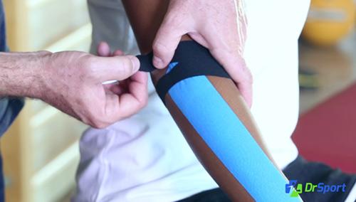 Comment réaliser un kinésio tape pour une tendinite du coude (Epicondylite ou Tennis Elbow) ?