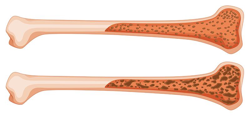 schema-os-avec-et-sans-osteoporose