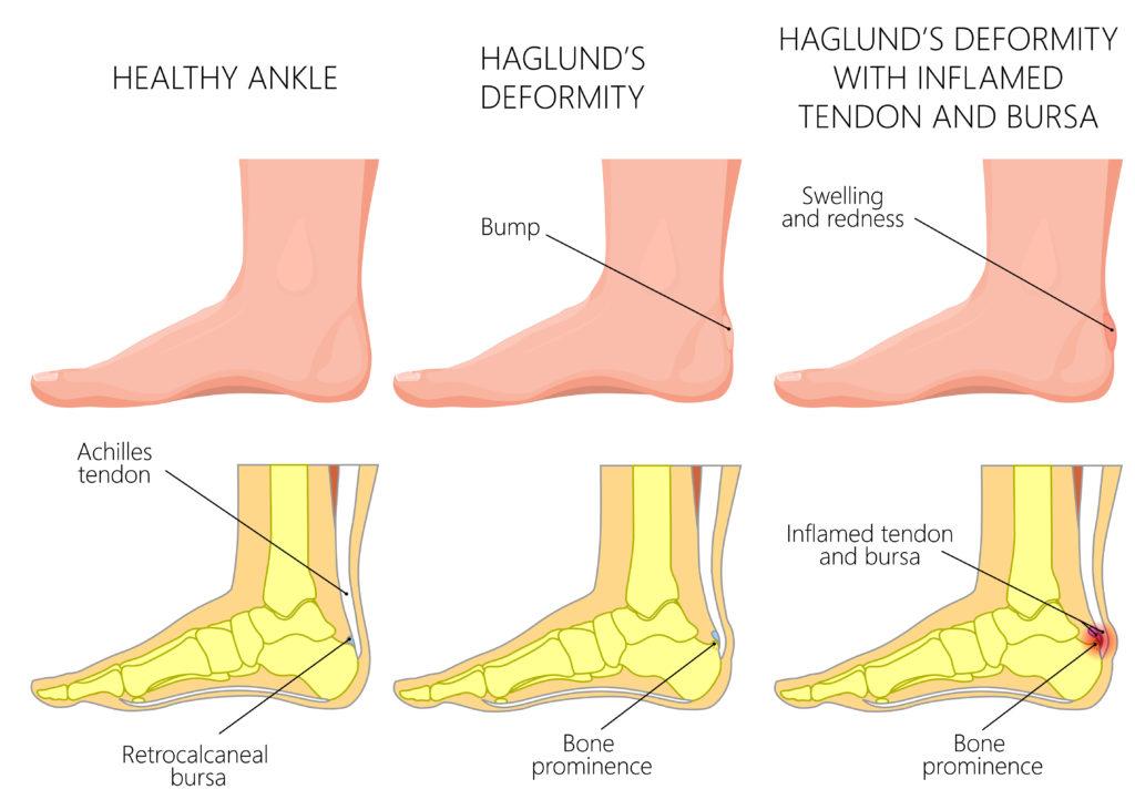 schéma des différences entre un talon en bonne santé et un talon atteint de la maladie de haglund et d'une bursite du tendon d'Achille